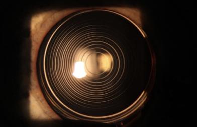 IOL Multifocale oculista cillino